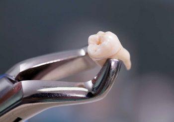 Clínicas Odontológicas têm direito à redução de tributos